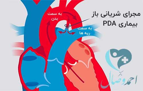 بیماری pda یا مجرای شریانی باز