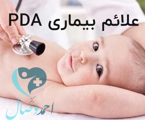 علائم بیماری PDA
