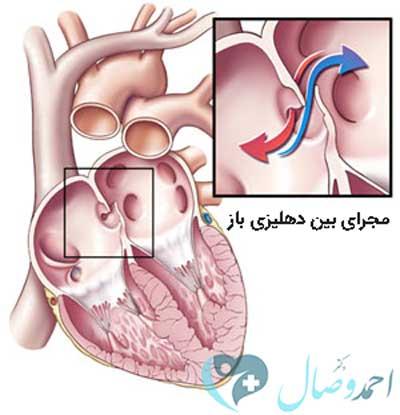 عوراض بیماری PFO