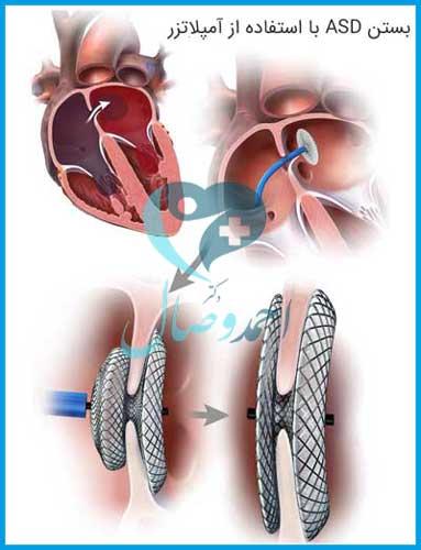 درمان بیماری با بستن asd