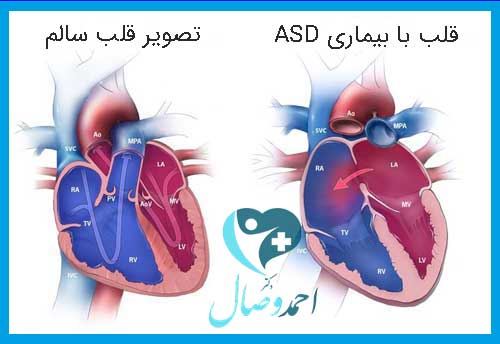 بیماری ASD (نقص دیواره دهلیزی) چیست؟