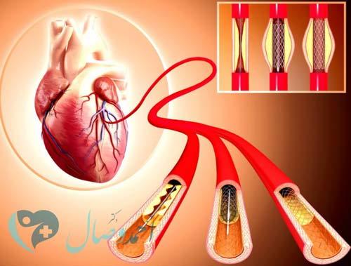 بالون آنژیوپلاستی چگونه انجام می شود
