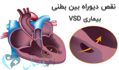 بیماری VSD