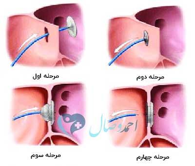 مراحل بستن VSD نقص دیواره بینبطنی