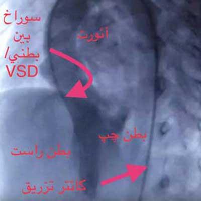 بستن سوراخ VSD