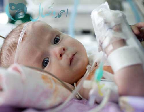 آنژیوگرافی اطفال - آنژیوگرافی قلب کودکان