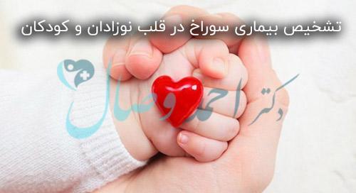 تشخیص بیماری سوراخ در قلب نوزادان و کودکان