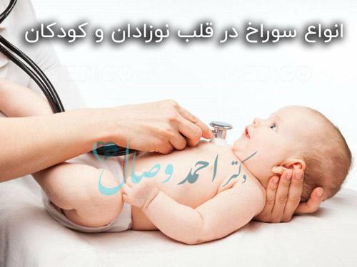 انواع سوراخ در قلب نوزادان و کودکان