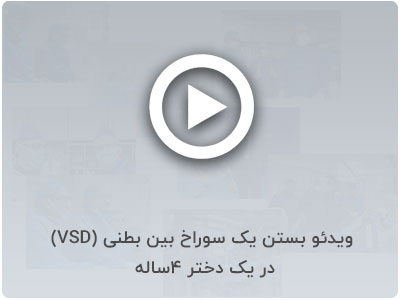 بستن یک سوراخ بین بطنی(VSD)در یک دختر ۴ساله در بیمارستان عرفان سعادت آباد